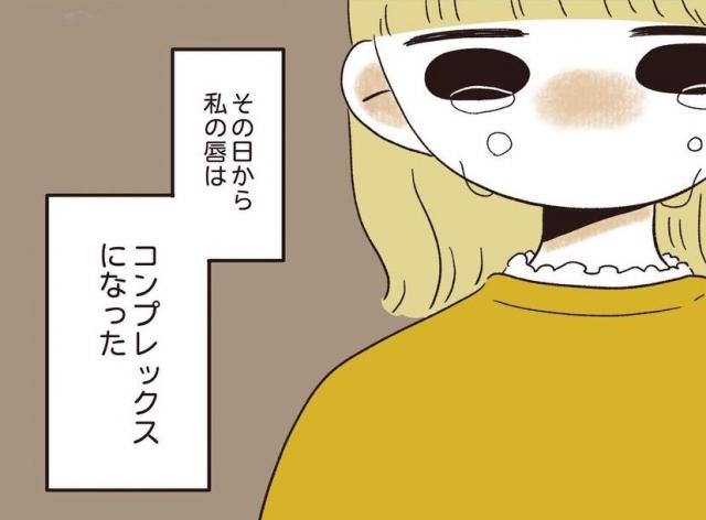 「自分の唇が嫌い」コンプレックスへの考え方を漫画で発信(画像提供:anzu.shiba.log)の画像
